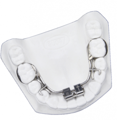 Expander for Lower Arch