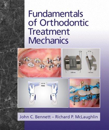 Fundamentals of Orthodontic Treatment