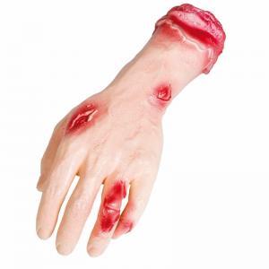 Sårad hand