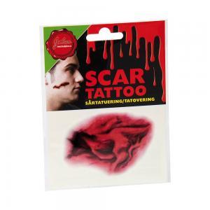 Tatuering sårskada