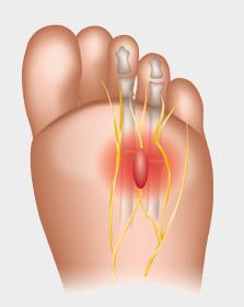 ont i foten undersidan