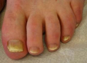 hudsprickor vid naglarna