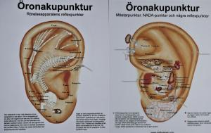 Plansch, öronakupunktur