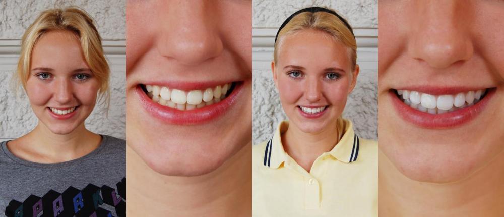 white one tandblekning recension
