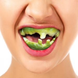 Fula tänder